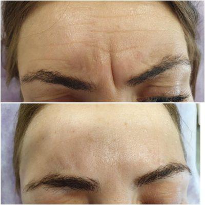 Nina Iahimovici before and after